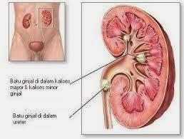 kelainan dan gangguan pada ginjal
