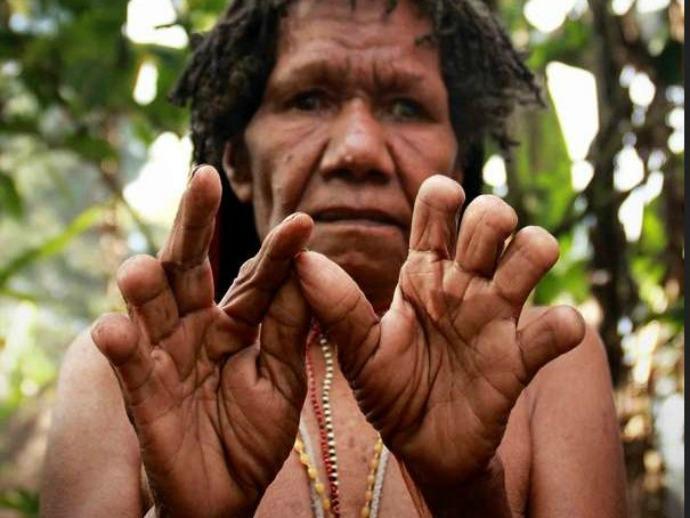 Tradisi potong jari di papua
